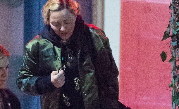 Madonna on meikitön ja hänen kasvonsa ovat oudosti turvoksissa.