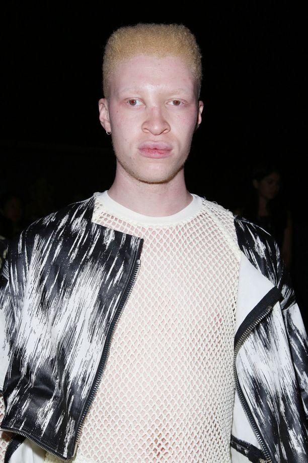 Shaun Rossilla on albinismi, mikä aiheuttaa hänen vaalean ihonsa sekä punasilmäisyyden.