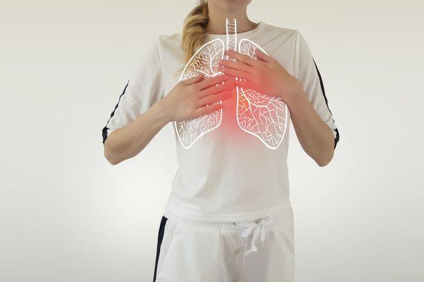 Koronavirustartunta voi saada aikaan keuhkokuumeen.