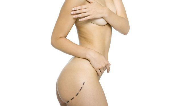 Yhdysvalloissa tehdään eniten kauneusleikkauksia koko maailmasta.