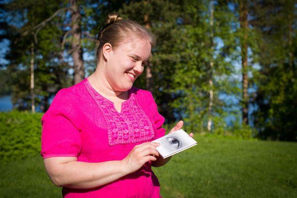 Selviydyttyään sairaudesta ja vaikeista elämäntilanteista Anni haluaa nyt tukea muita.