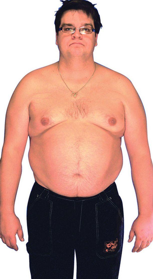ENNEN. Petrin painonpudotus alkoi 131 kg:n lukemista.