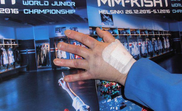 Puhakaisen käsi kuvattiin röntgenissä.