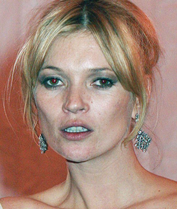 Kate Moss on joutunut lehtien hampaisiin huumeiden käytön takia.