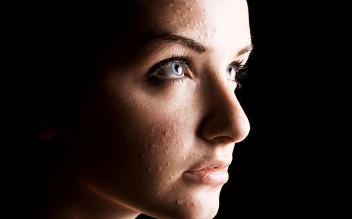 Nyt tulee ihopositiivisuus – katso tavisten rohkeat aknekuvat!
