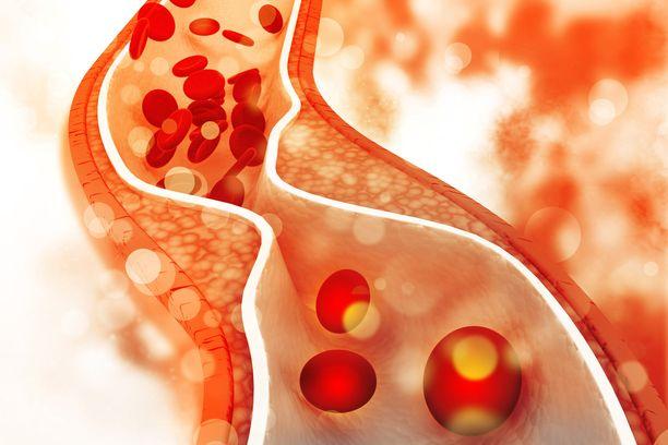 Kolesteroli voi muodostaa verisuoniin plakkia, joka estää veren virtaamista.
