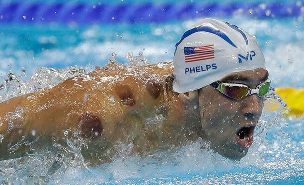 Michael Phelpsin selän jäljet kuppauksesta ovat herättäneet ihmetystä.