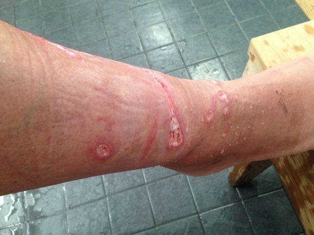 Jalassa näkyy kuin ruoskan jäljet meduusan jäljiltä. Satu kuvailee, että meduusalla on lonkerot, jotka osuivat ihoon. Kuva 16.2.2016.