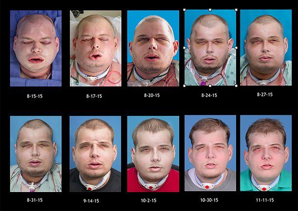 Näin kasvot ovat muuttuneet leikkauksen ja lisäleikkausten jälkeen.