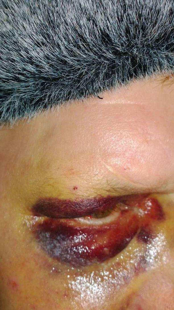 Uhria pahoinpideltiin potkimalla ja hakkaamalla, uhria uhattiin myös veitsellä. Oikea silmä on pahoin ruhjoutunut ja musta.