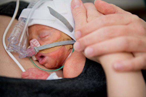 Äidinmaito edistää keskosvauvan kehitystä ja suojaa monilta vaarallisiltakin infektioilta.