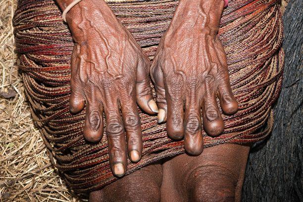 Perinteisiin kuuluu, että sormet katkaistaan nimenomaan naisilta. Muutenkaan dani-yhteisö ei  ole Steve Backshallin mukaan kaikkein tasa-arvoisin.