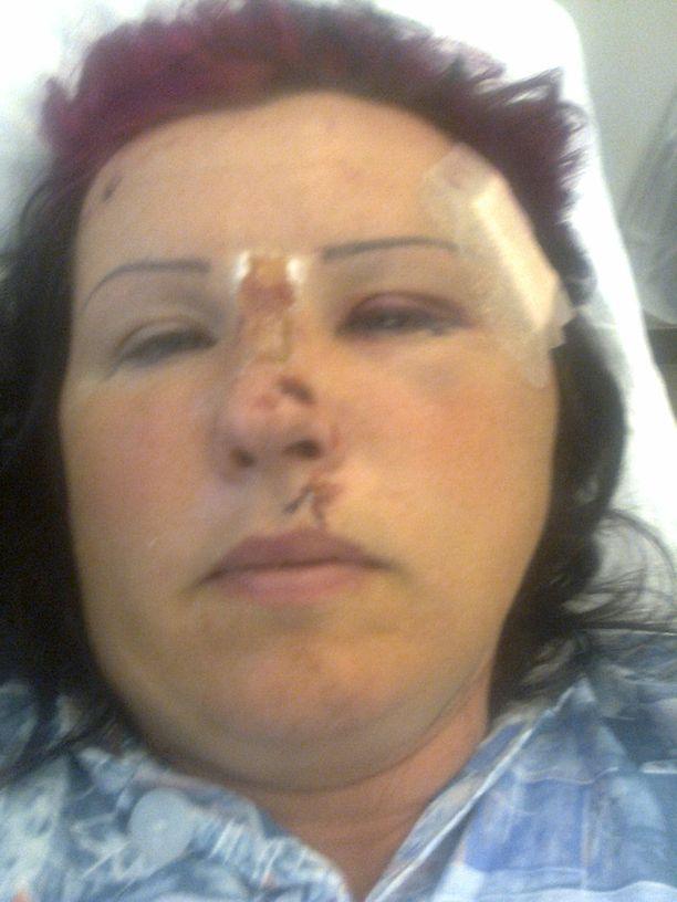 Sari onnettomuuden jälkeen sairaalassa.