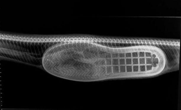 Lääkäri kuvasi röntgenkuvaa yhdeksi vaikuttavimmaksi näkemistään.