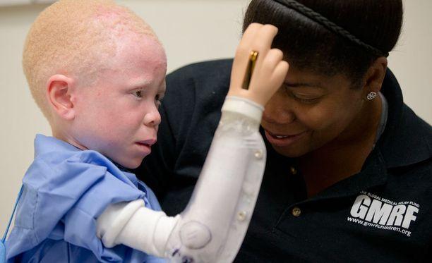 Proteesia sovittava 5-vuotias Baraka Lusambo yrittää koskettaa Monica Watsonia.