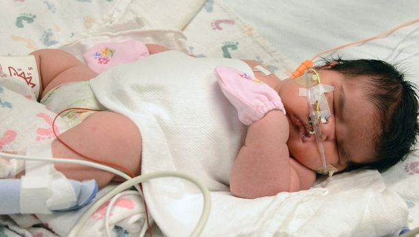 Mia Yasmin Garcia kuvattiin pian syntymänsä jälkeen tiistaina 2. joulukuuta.