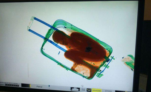 Adou, 8, oli tungettu hengenvaarallisesti matkalaukkuun.