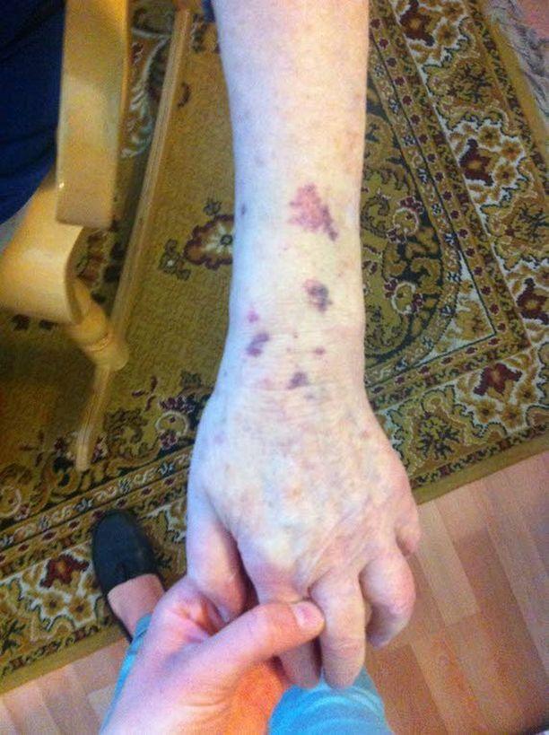 Tyttären ottamista kuvista näkyvät muistisairaan naisen käsissä olevat mustelmat.