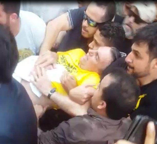 Puukotuksessa haavoittunut Jair Bolsonaro.