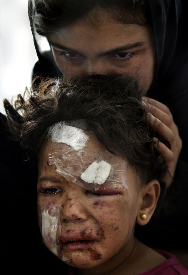 Länsi-Mosulista paennut 4-vuotias Noor sai vakavia vammoja, kun hänen kotinsa romahti.