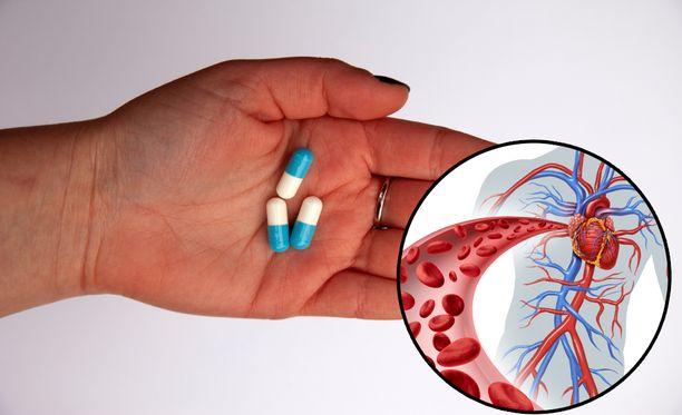 Kontrolloimattomalla aspiriinilääkityksellä on sisäisen verenvuodon riski.