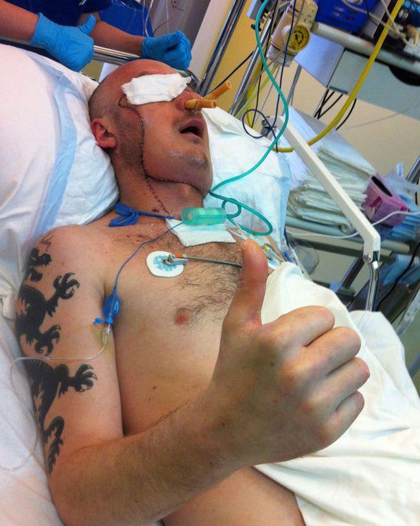 33-vuotias mies nosti peukun pystyyn leikkaukseen jälkeen.