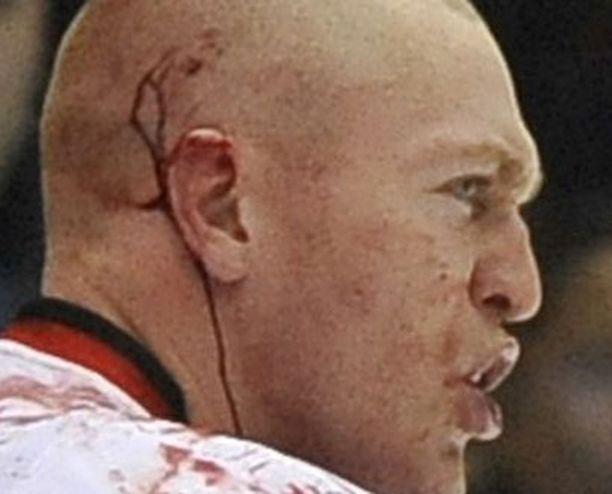 Matt Carkner taistelee verissä päin.