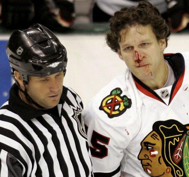 Dallasin Krys Barsch väänsi Chicagon Jesse Boulericen (kuvassa) nenän auki.