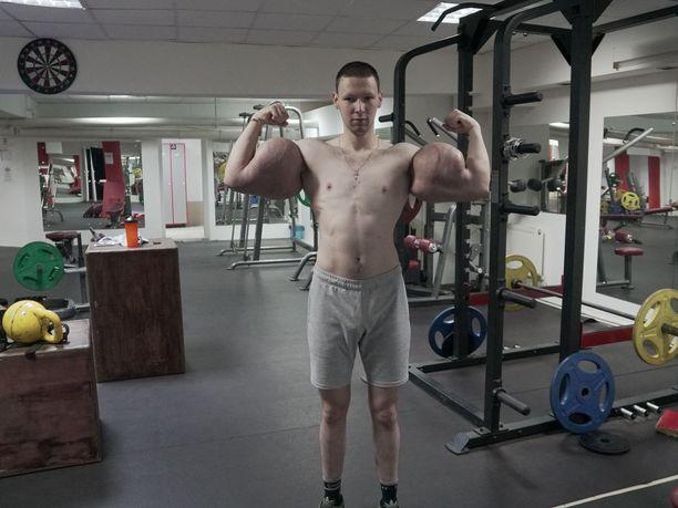 Kirill Tereshin tunnetaan maailmalla yhdestä asiasta: syntholilla täytetyistä olkavarsista.