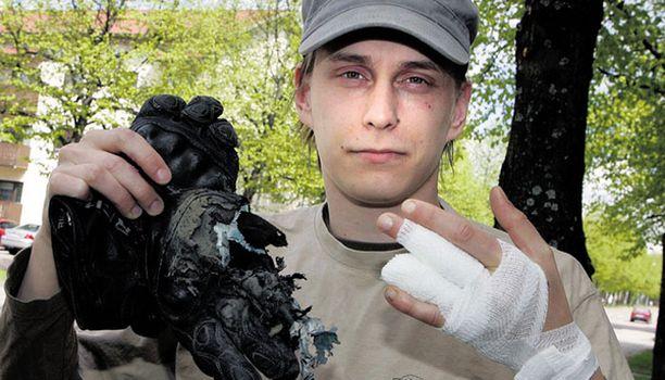 KUNNON SUOJA Riihimäkeläinen Jerry Jalava joutui moottoripyöräonnettomuuteen. Hänet pelasti pahimmalta kunnon suojavarusteet.
