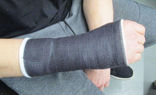 Antti Pihlströmin ranne leikattiin 19. joulukuuta. Nyt hän on saanut käteensä jo aiempaa kevyemmän lastan.