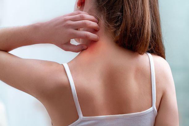 Jopa 90 prosenttia meistä saa jonkinasteisen allergisen reaktion hyttysen pistosta.
