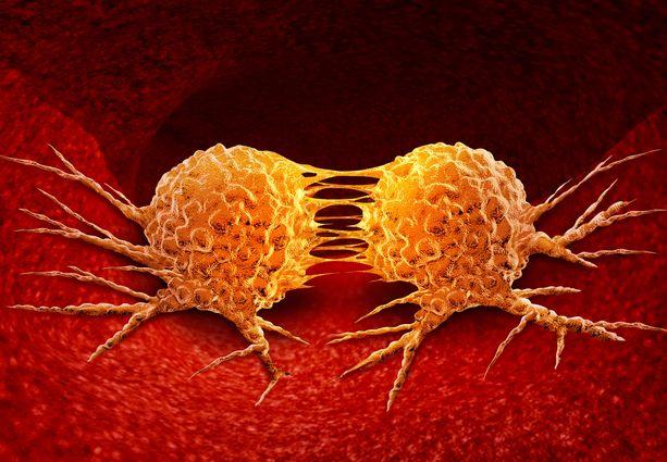 Uuden tutkimuksen tulokset voisivat tulevaisuudessa auttaa löytämään syöpä aiemmin, uskovat tutkijat.
