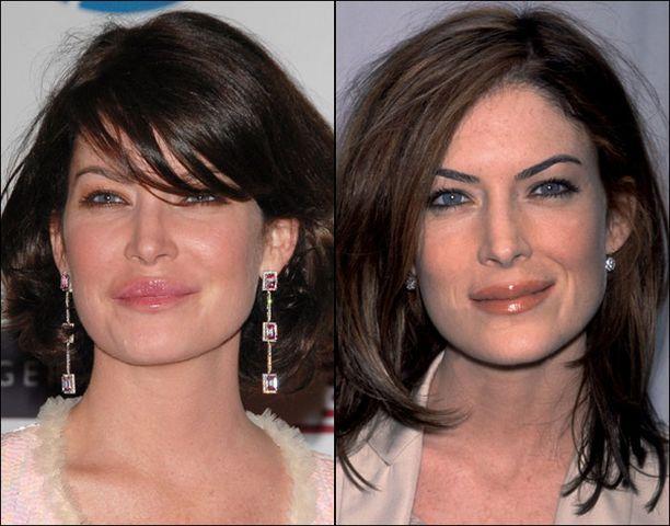 Lara Flynn on aiemmin kohennuttanut lähinnä huuliaan (vasen kuva vuodelta 2006, oikea vuodelta 2002).