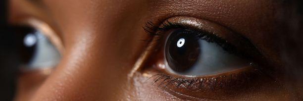 Nykytekniikalla silmiä tutkimalla tai kuvaamalla niistä pystytään havaitsemaan useita yleissairauksia.