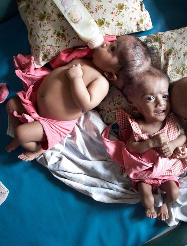 Krishna ja Trishna olivat vähällä kuolla orpokotiin pian syntymänsä jälkeen.