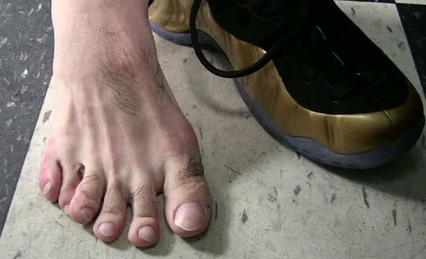 Danny Garcian oikeassa jalassa on ylimääräinen varvas.
