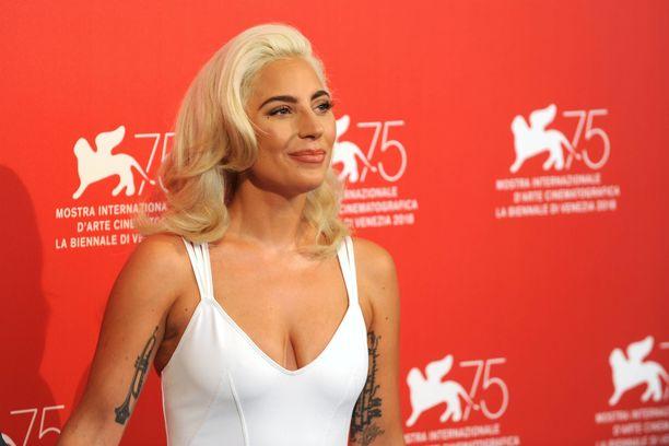 Lady Gaga on nähnyt urallaan paljon.