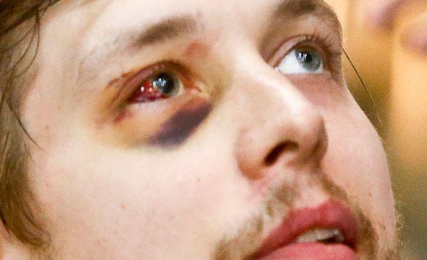 Jukka Peltolan silmä oli todella karun näköinen siihen osuneen mailan takia.