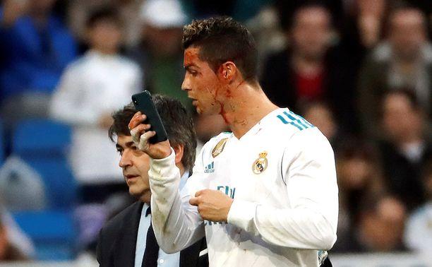 Cristiano Ronaldo peilaili verisiä kasvojaan kännykän avulla.