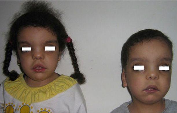 Kuvan sisaruksilla näkyy Robinowin syndroomaan liittyviä muutoksia kasvoissa.