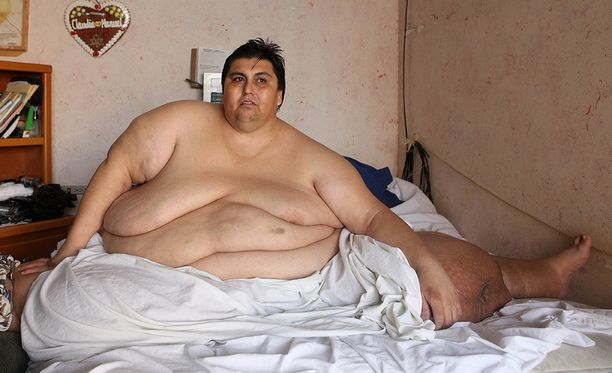 Aikaisempaa lihavuusennätystä piti hallussaan niin ikään meksikolainen Manuel Uribe.