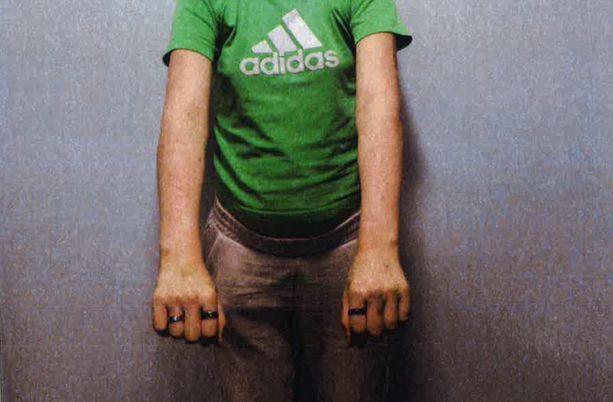 Poliisi kuvasi epäiltyjen käsivarret, koska ihokarvoista oli pääteltävissä mahdollisia palojälkiä.