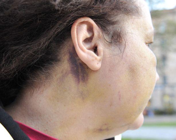 Ryöstäjä jätti kädenjälkensä Tainan niskaan painamalla naisen päätä vasten penkkiä.