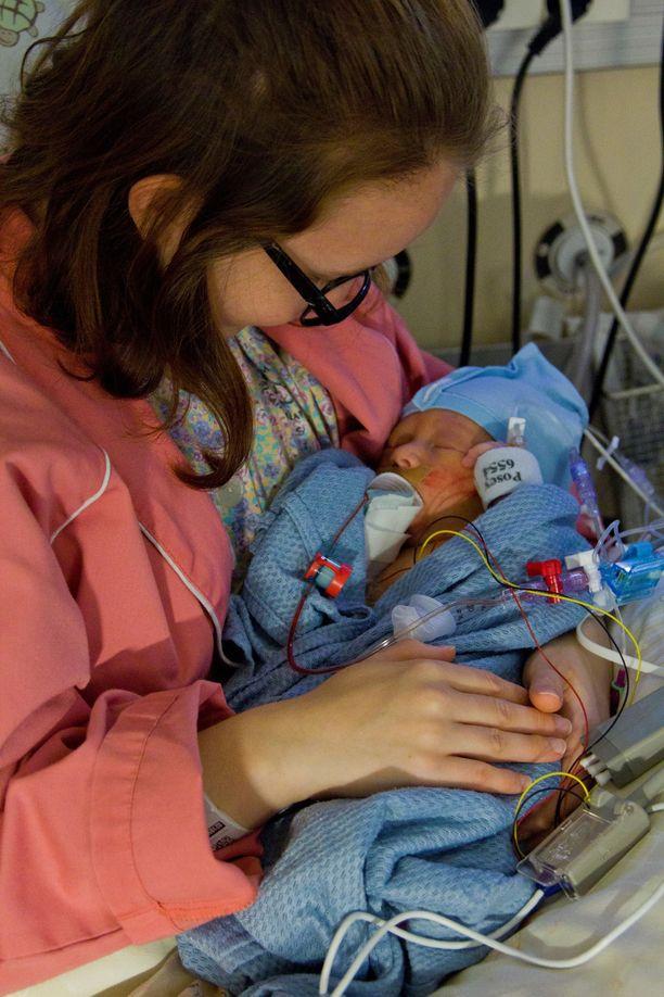 Toivo pääsi äidin syliin ensimmäistä kertaa synnytyksen jälkeen kolmen vuorokauden ikäisenä.