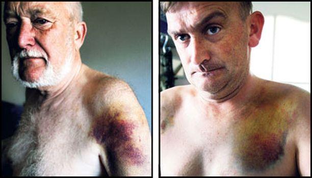 65-vuotiasta Klaus Dornemannia hakattiin pampuilla rajusti kylkiin ja käsiin. Lucas Dornemannin sormista katosi tunto muutamaksi päiväksi, ja häneen vartalonsa eri osiin koskee vieläkin.