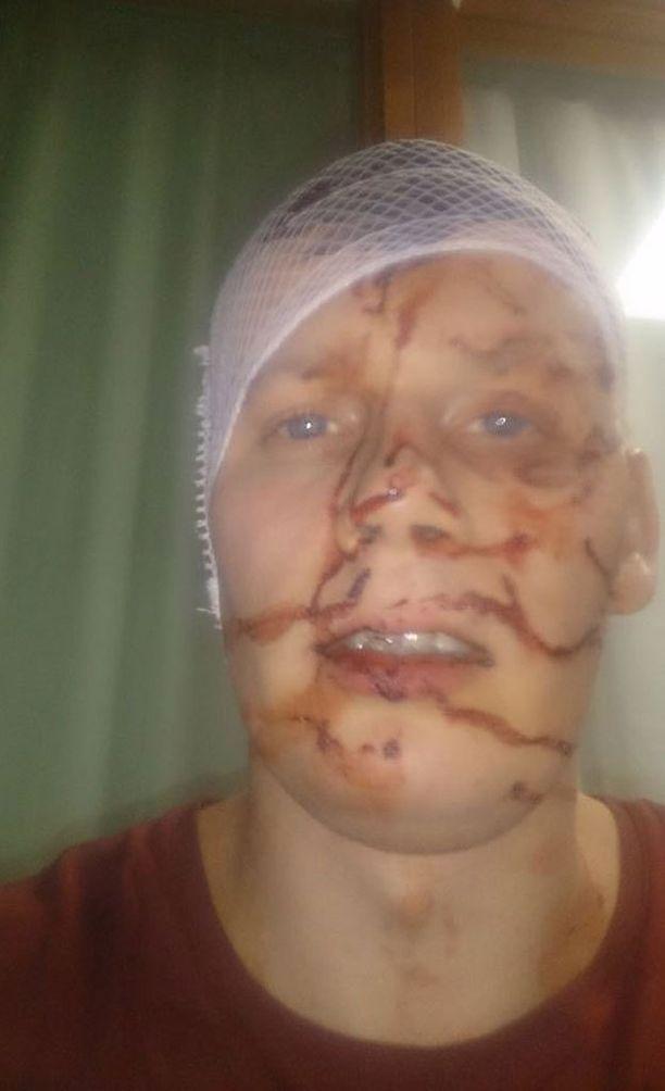 Röntynen jakoi Facebookissa kuvia vammoistaan, osoittaakseen kuinka vakavasta jutusta oli kyse ja saadakseen syyllisen kiinni.