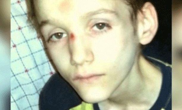 Vanhemmat murhasivat Alex Raditan Kanadassa.