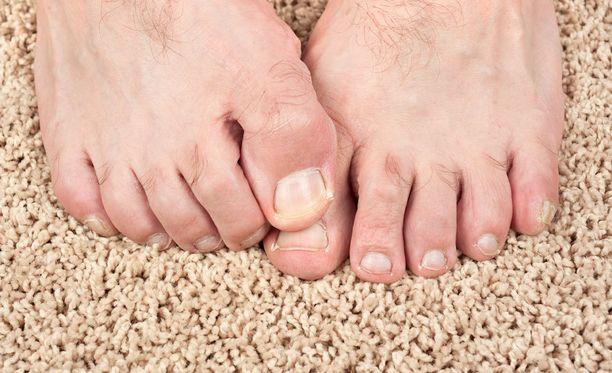 Yleisin kutinan syy on kuivuminen ja tulehdus ihossa.