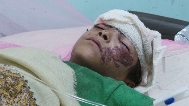 Saudikoalition ilmaiskussa haavoittunutta jemeniläispoikaa hoidettiin Sadaassa elokuun alkupuolella.